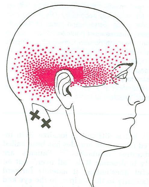 Headache Faq